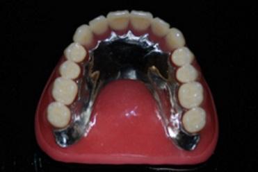 金属床+シリコン義歯