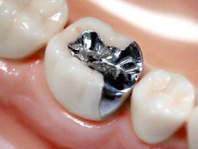 銀歯(金銀パラジウム合金)